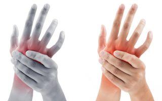 Онемение рук – в чём причина?