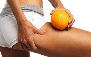 Антицеллюлитные упражнения. Как убрать «апельсиновую корку»?